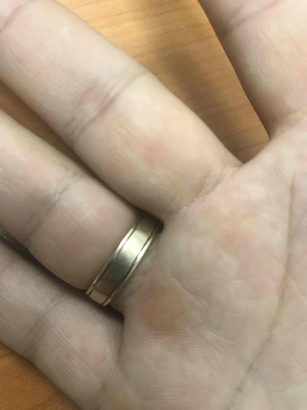 Стерлась середина-главная фишка кольца